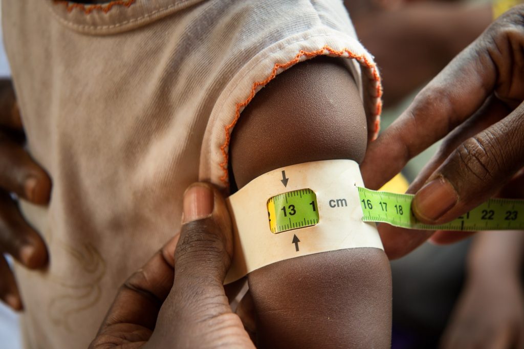 A nurse measures a child's arm with a colored band, this child's band points to the green or healthy area