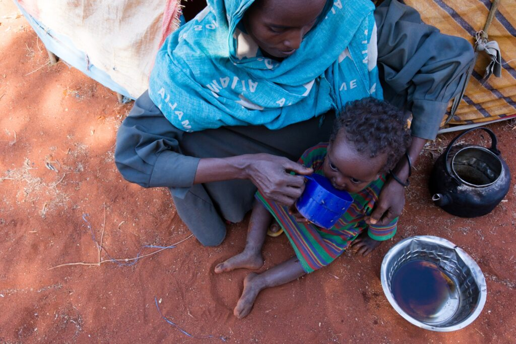 Children suffer from malnutrition as a result of the famine in Somalia