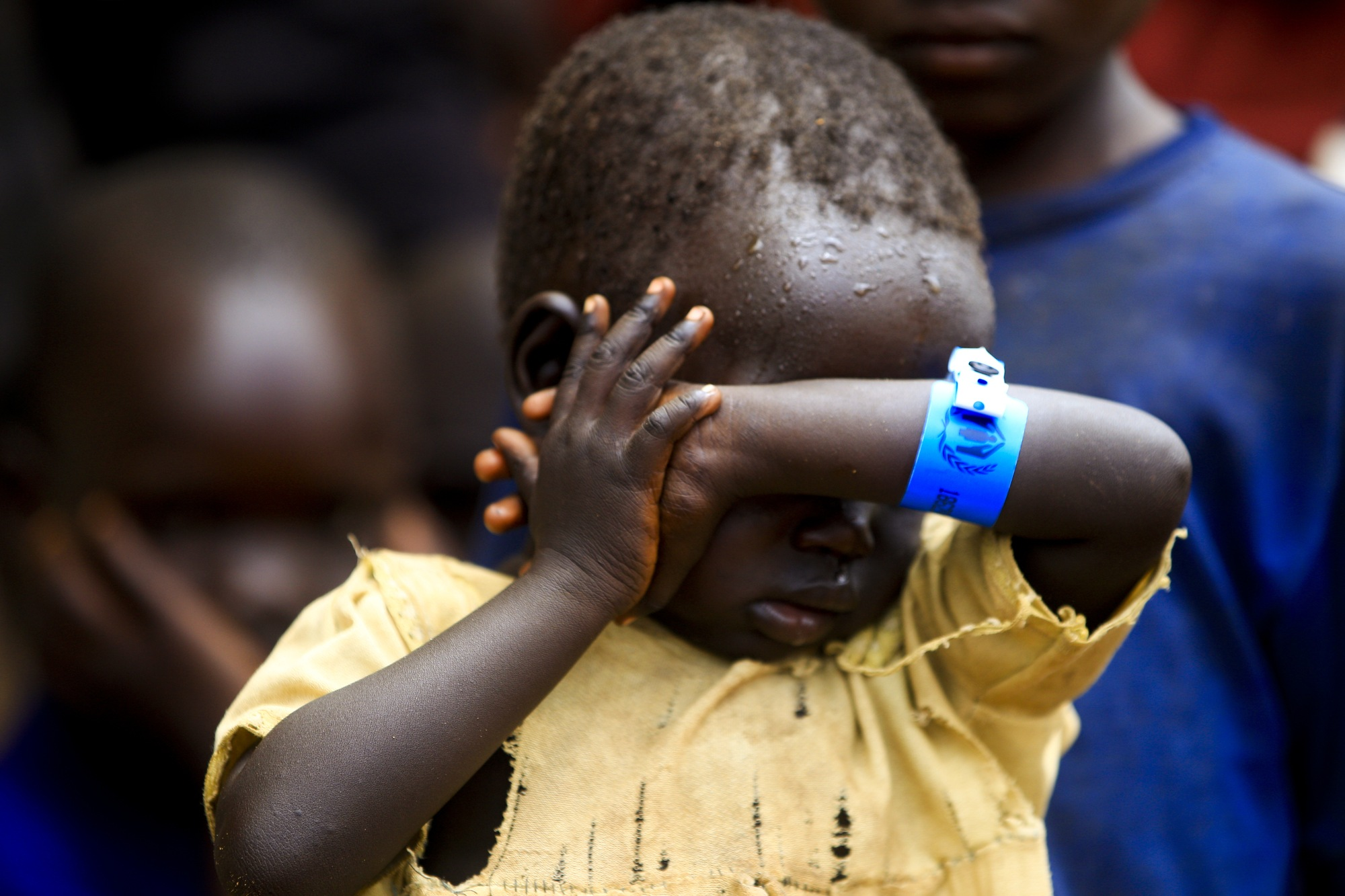 A child from Pajok, South Sudan wearing an arm band signifying his refugee status after his family fled to Uganda to flee the violence.