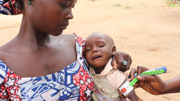A mother holds her crying child, the band on the child's arm shows red