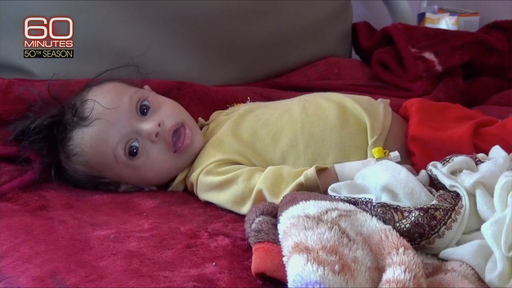 A child in yellow with large, sunken eyes and open mouth lies on a bed and looks at the camera