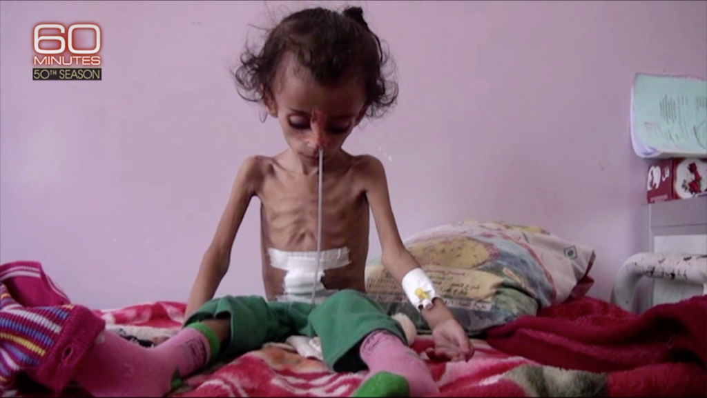 7-year-old Haifa looks down at her body, her ribs protruding through her skin, she has a tube through her nose