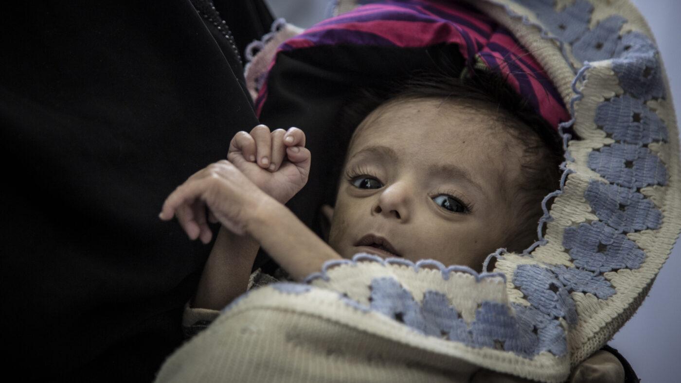 Image depicting Fighting famine in Yemen