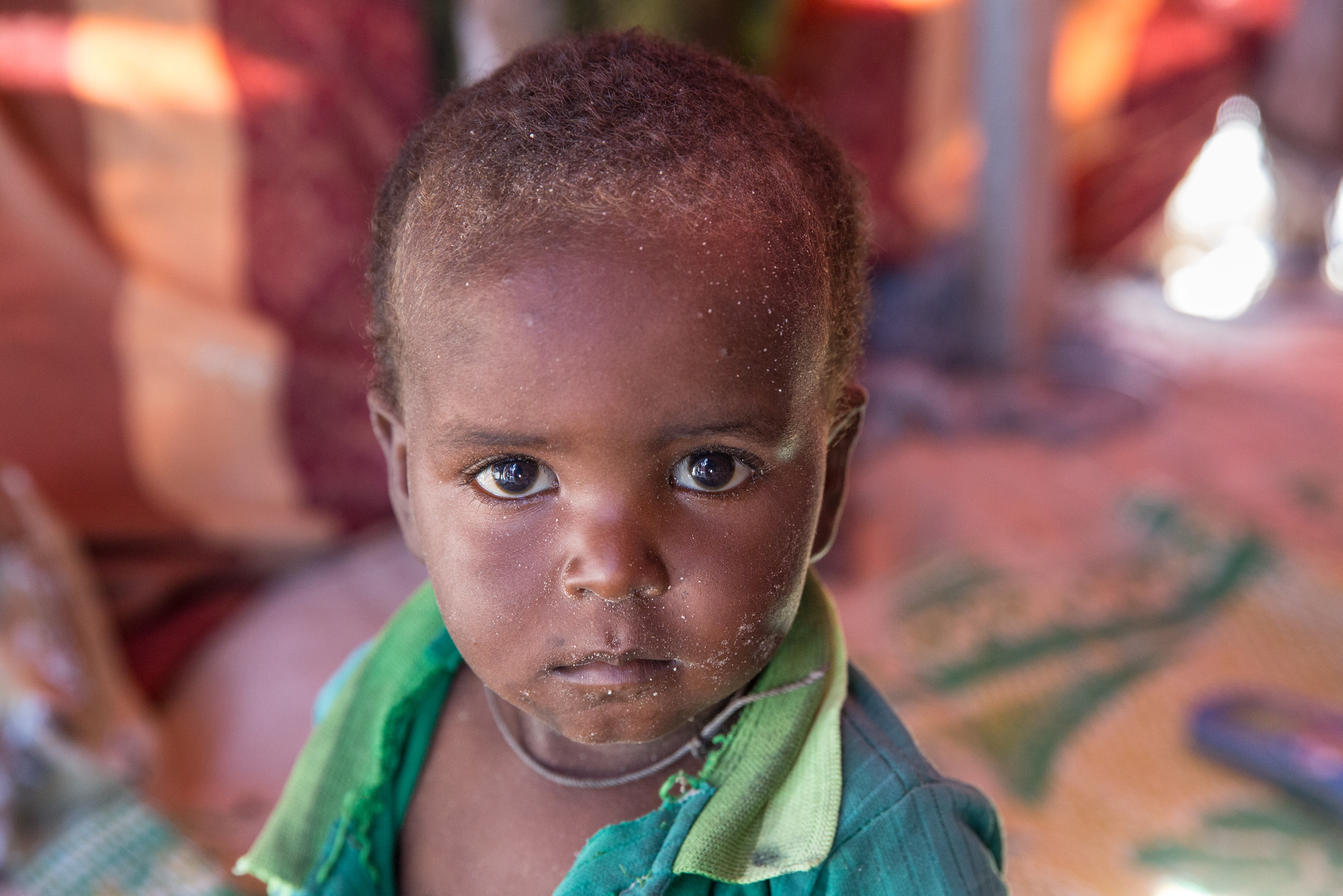 A Young IDP in Somalia