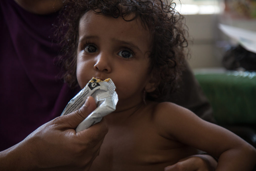 WFP supplementary food packets help keep malnourished children in Yemen from starving