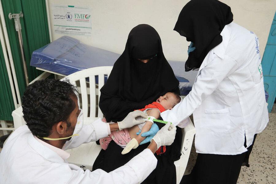 Famine in Yemen causes malnutrition in children