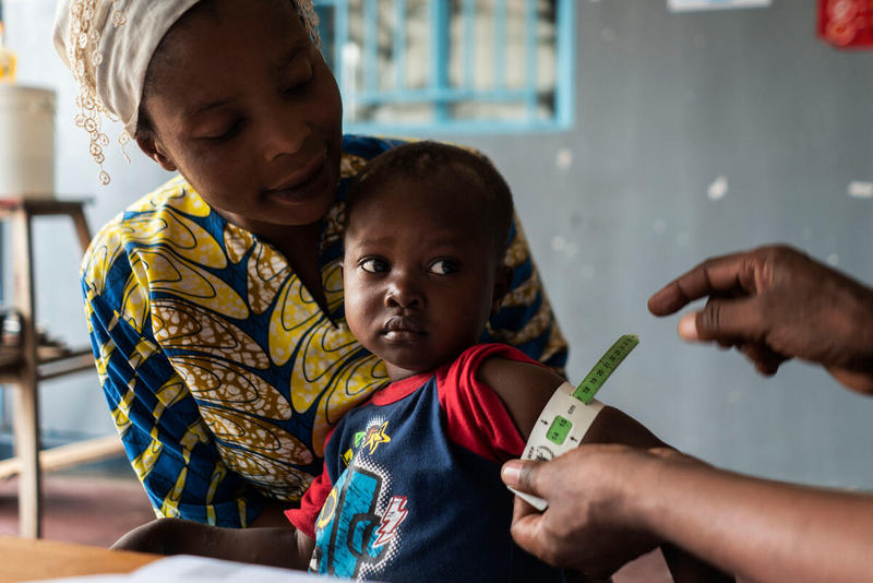 Famine causes malnutrition in children, such as this child in the DRC