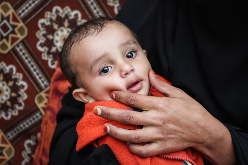 Mother holds a baby in Yemen, who is suffering from malnutrition due to famine